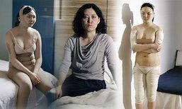 แลกมาด้วยความเจ็บปวด! สาวเกาหลี ยอมศัลยกรรมทั้งตัวเพื่อความงาม
