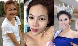 """ชัดเจน! """"ไดร์ จิณณ์ณิตา"""" Miss Thailand World 2016 หน้านี้สวยศัลยกรรม"""