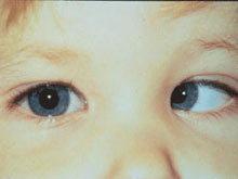 เด็กเล็กตาเขตาเหล่ให้ระวังมะเร็งขึ้นจอตา