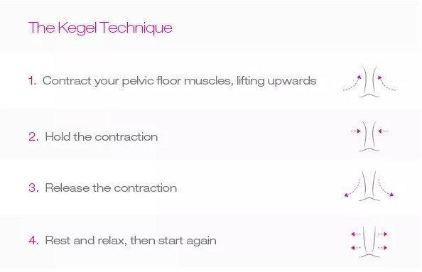 the-kegel-technique