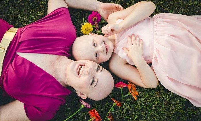 หัวล้านแต่สวยงาม ภาพถ่ายของคู่แม่ลูกที่ป่วยจนต้องไม่มีผม แต่พวกเธอก็ยังยิ้มได้