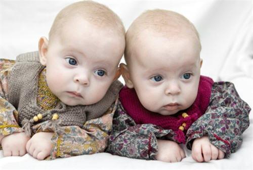 8 ข้อสงสัย ไขปัญหา ท้องนี้มีฝาแฝด