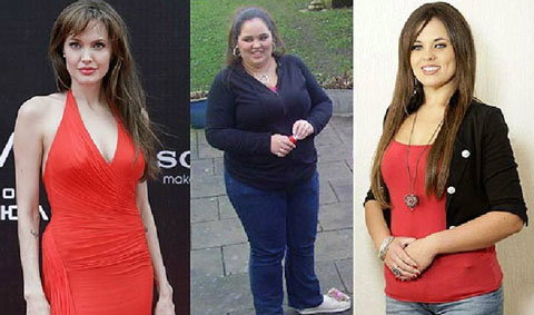 สาวหนัก 140 กก. ลดน้ำหนักจนสวยผอมเหมือน โจลี