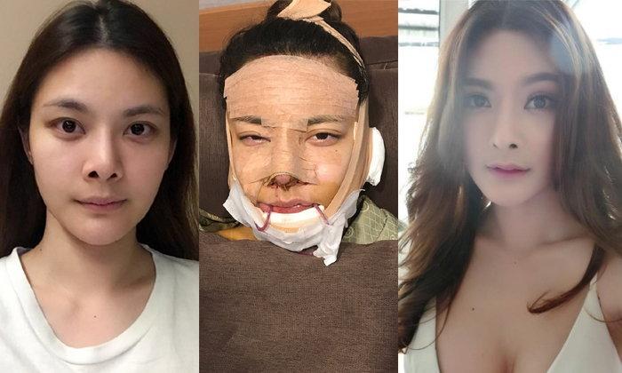 """สวยแล้วต้องสวยอีก """"บันนี่ แป้งโกกิ"""" บินตรงศัลยกรรมเกาหลี ดูดีทุกมุม"""
