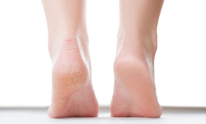 ส้นเท้าแตก ลืมไปได้เลย กับ 5 สูตรแก้ปัญหาส้นเท้าแตกอย่างได้ผล