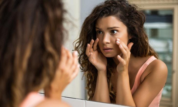 5 ตัวช่วยแก้ปัญหาถุงใต้ตาบวม พร้อมบำรุงดวงตาให้สวยสดใสเป็นธรรมชาติ