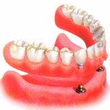 ทำความรู้จัก รากฟันเทียม