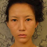 Chen Yi Man ศัลยกรรม