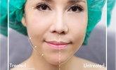 นวัตกรรมยกกระชับหน้าเรียวแบบไม่ผ่าตัด เห็นผลจริงหรือไม่?