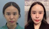 """""""มิ้ง ศวภัทร"""" โชว์หน้าบาร์บี้หลังทุ่มเงินศัลยกรรมเกาหลี ครบ 1 เดือน"""