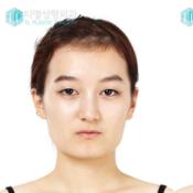 ศัลยกรรมเกาหลี