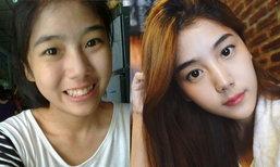 ยิ่งโตยิ่งสวย สมายด์ เดอะสตาร์ หลังทำจมูกแท่งนี้ ดูเป็นสาวเกาหลี แบ๊วมาก