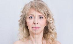 ลดริ้วรอยให้ใบหน้าคุณสวยใสอีกครั้งด้วย BOTOX & Filler