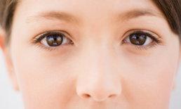 4 ตัวการทำให้เกิดปัญหาถุงใต้ตาบวมที่สาวๆ จัดการได้