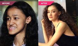 ศัลยกรรมเปลี่ยนชีวิต ด้า ธันยนันท์ สาวคางยาว เป็นสาวสวยอินเตอร์