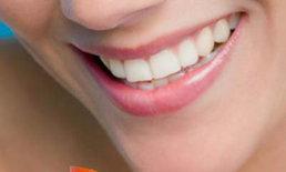 Eat for a Beautiful Smile กินอย่างไรให้ยิ้มสวย