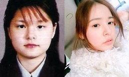 """เผยขั้นตอน """"ทำตาสองชั้น"""" ศัลยกรรมยอดฮิตของไอดอลเกาหลีและคนเอเชีย"""