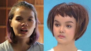 เปลี่ยนชีวิต แป้ง ประภาภรณ์ สาวหน้าปลวก เป็นสวยแบบตุ๊กตา
