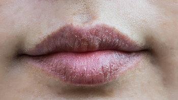 5 วิธีแก้อาการแพ้ลิปสติก ทำแบบนี้สิ ได้ผลชัวร์