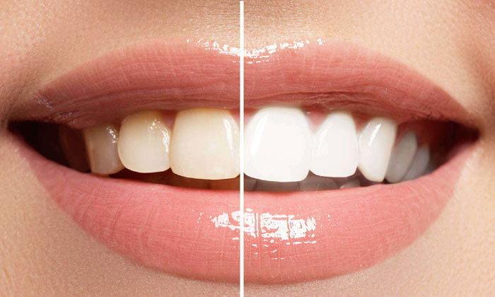 ฟอกสีฟัน โดยมืออาชีพ และเทคนิคฟันขาวที่ทำได้เอง แบบไหนให้ผลยังไงบ้าง